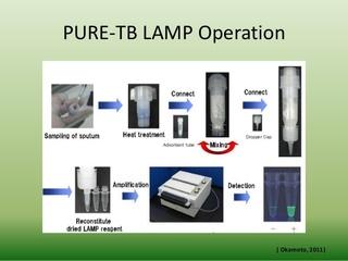TB LAMP.jpg